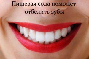 Секреты красоты - отбеливание зубов содой